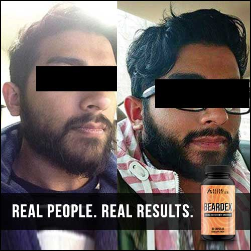 Beardex-Results-1