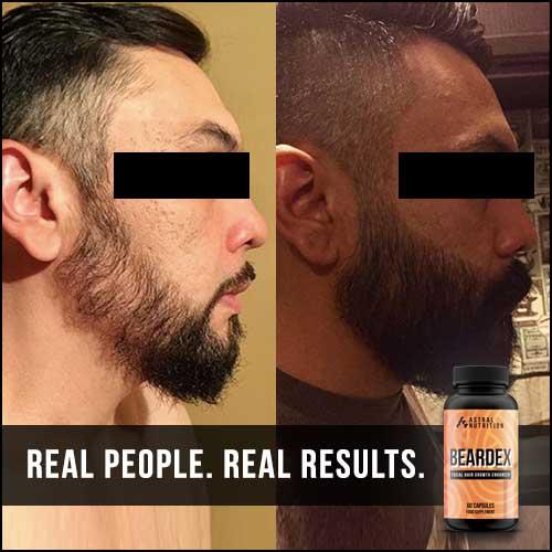 Beardex-Results-2