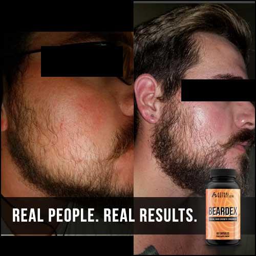 Beardex-Results-3