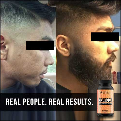 Beardex-Results-4