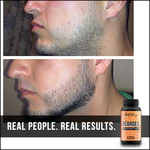 Beardex-Results-5