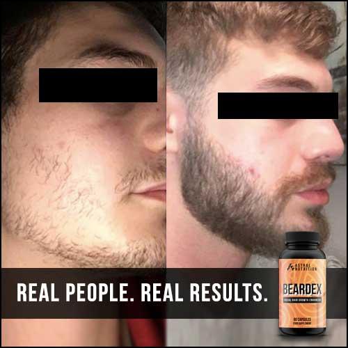 Beardex-Results-6