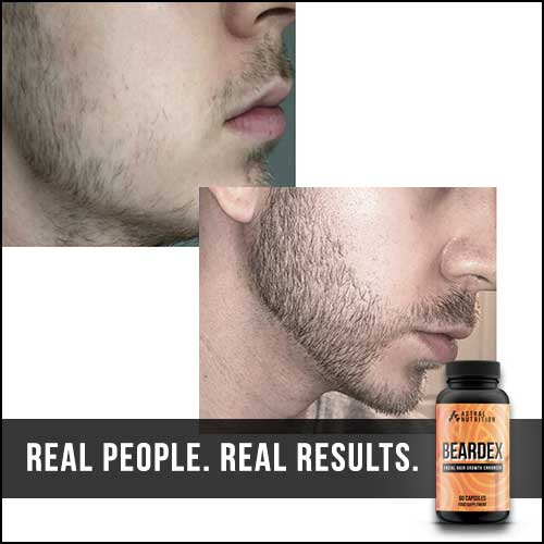 Beardex-Results-7