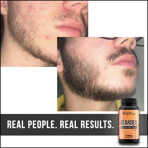 Beardex-Results-8
